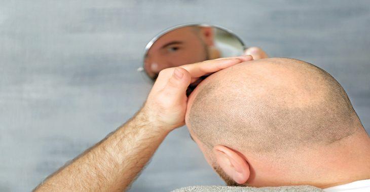 Est-ce que les cheveux transplantés chutent?