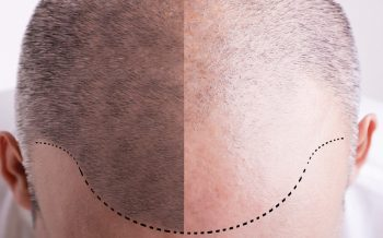Will I feel pain during or after hair transplantation?