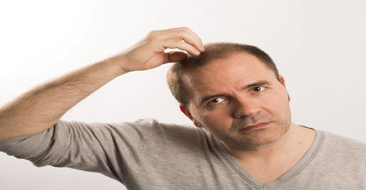 هل تؤثر زراعة الشعر على صحتي؟