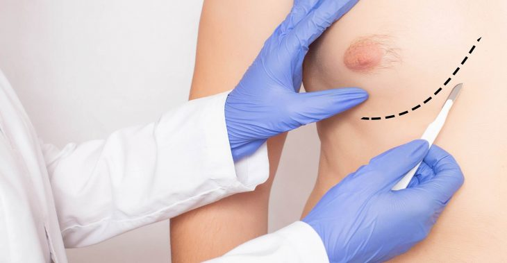 Who are suitable for gynecomastia?