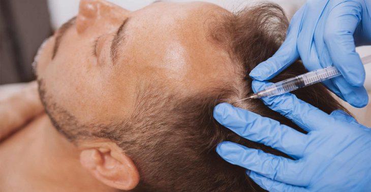 العلاج بالبلازما بعد زراعة الشعر